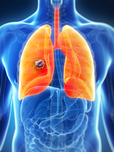 RNAs Could Stop Tumor Growth in Lung Cancer Patients