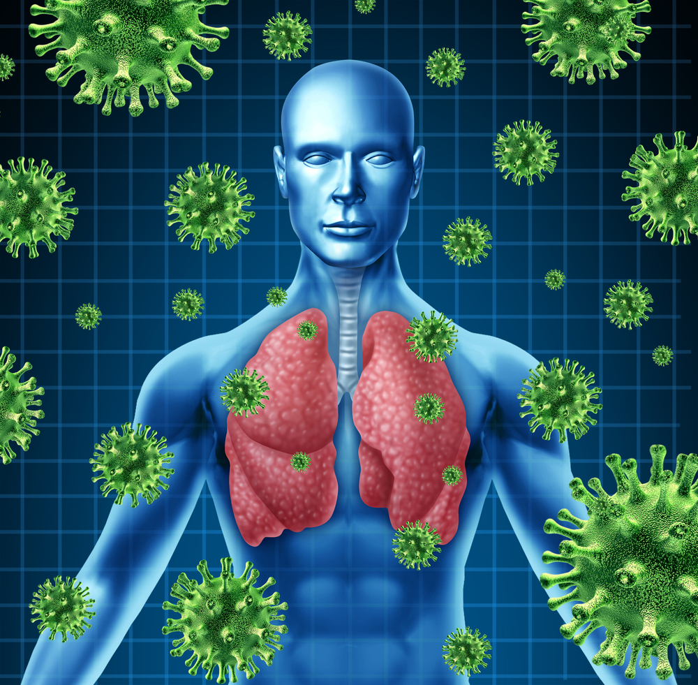 Lung Infections May Impair Ability to Detect Lung Cancer