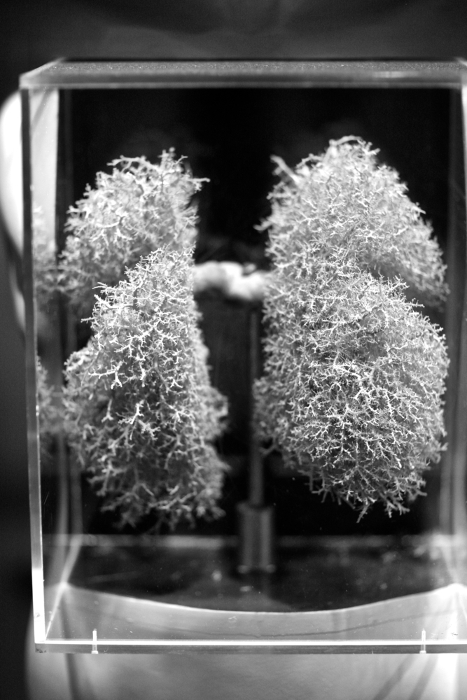 Study Compares Treatments And Survival Benefits For Early-Stage Lung Cancer