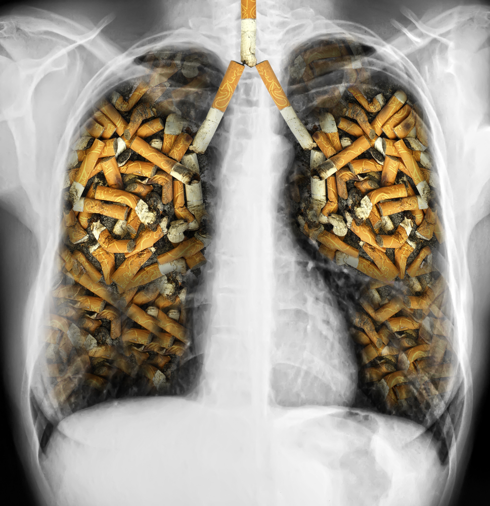 CT Test For Hidden Lung Cancer: Cost-Effectiveness And Insurance Coverage