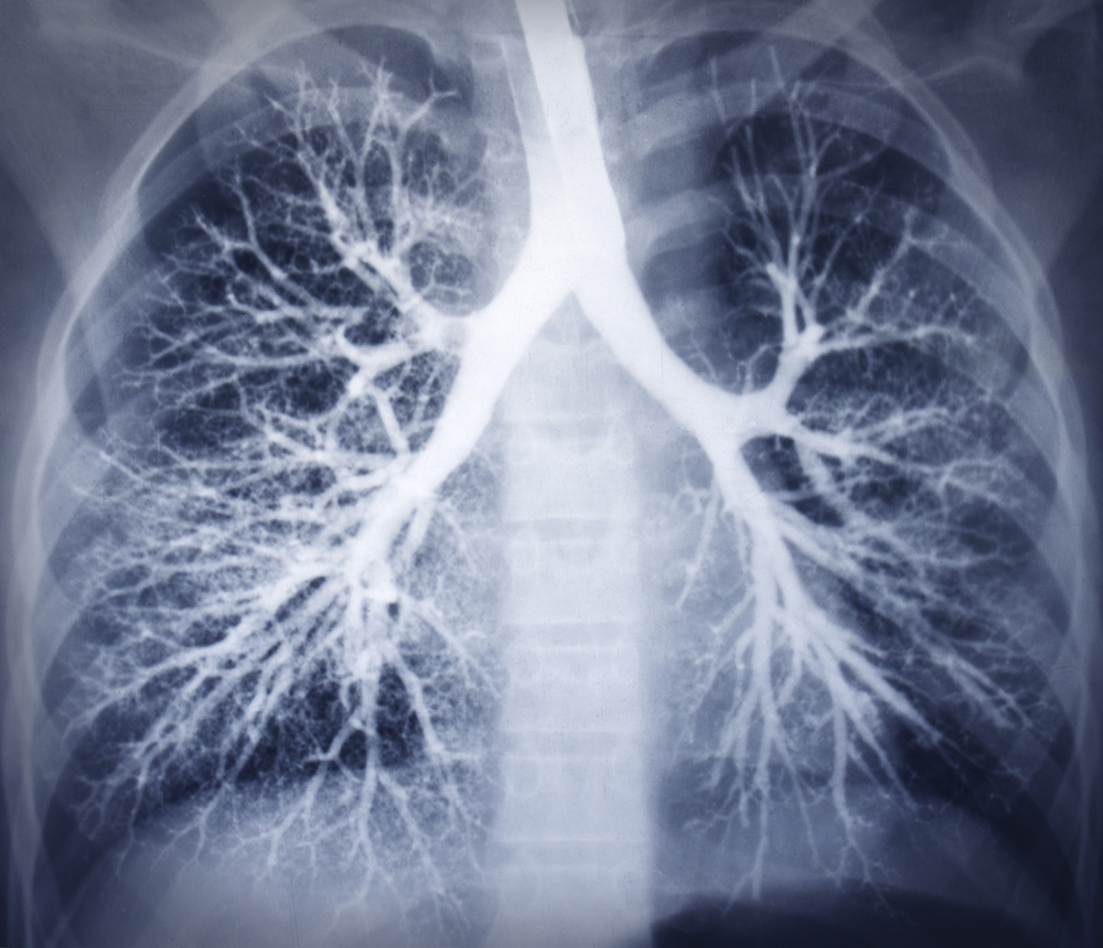 Study Finds Potential Biomarkers in NSCLC