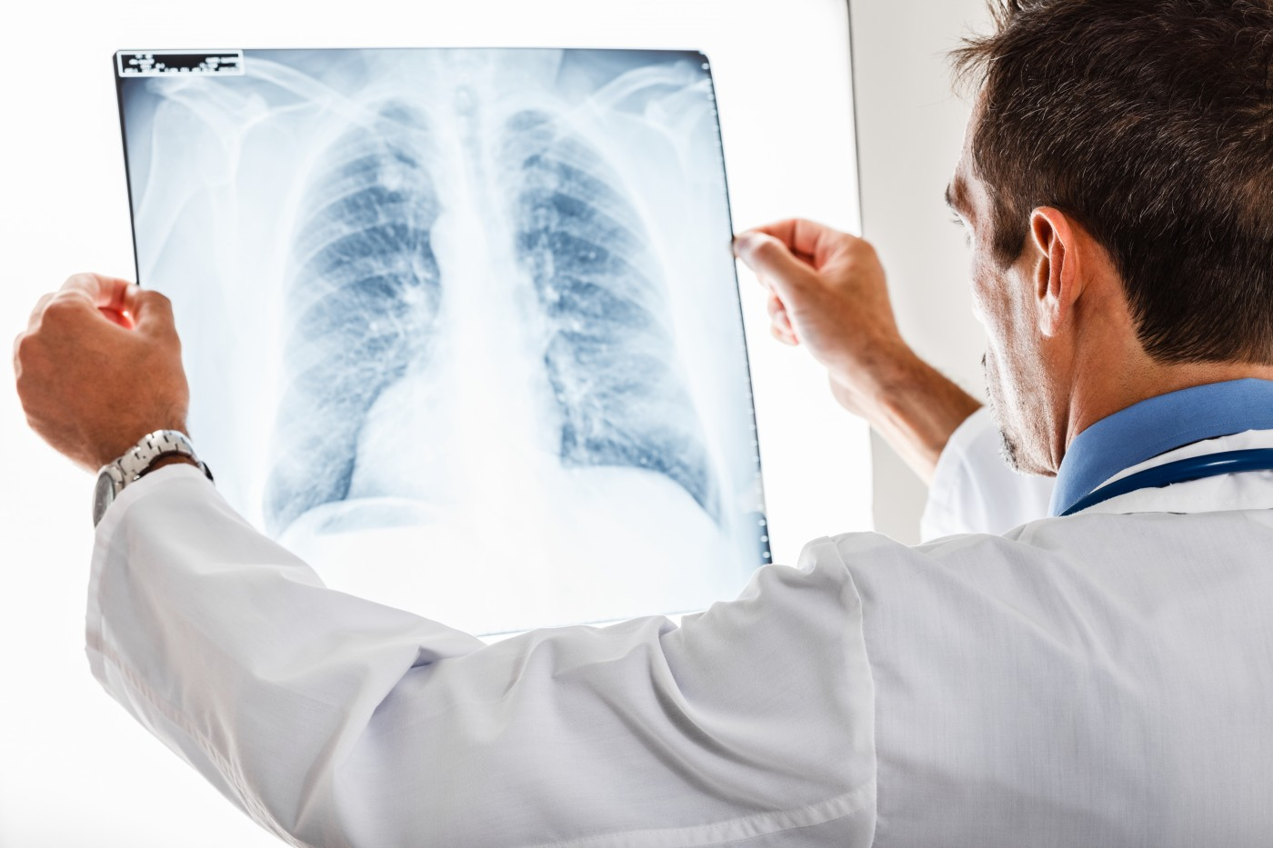 Implementing Lung-RADS Guidelines May Result in More Effective Lung Cancer Screening