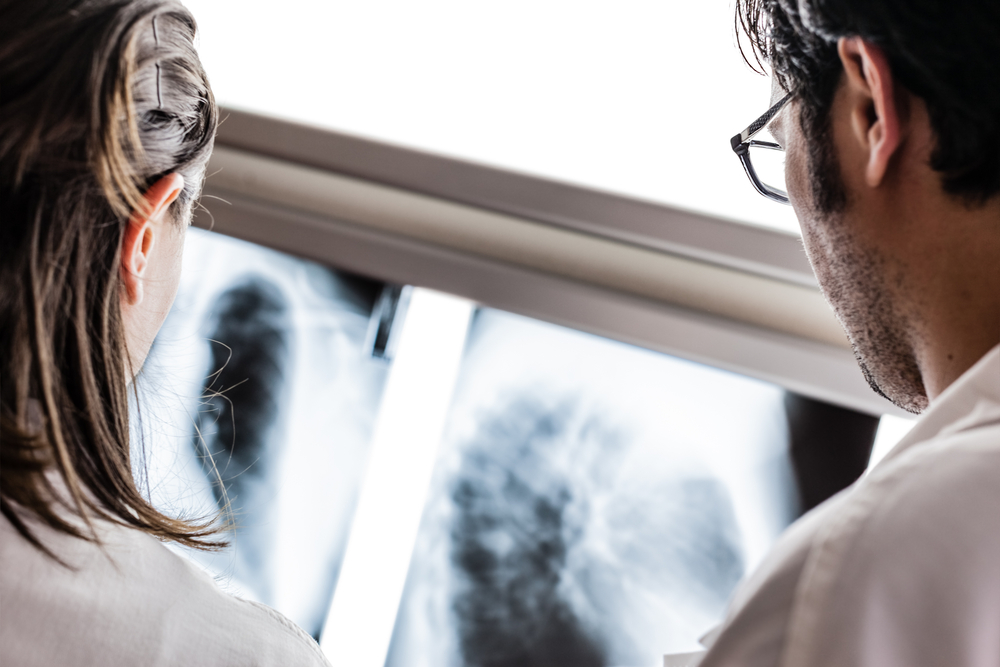 Lung Cancer Scans Together With Head And Neck Cancer Screening May Improve Survival