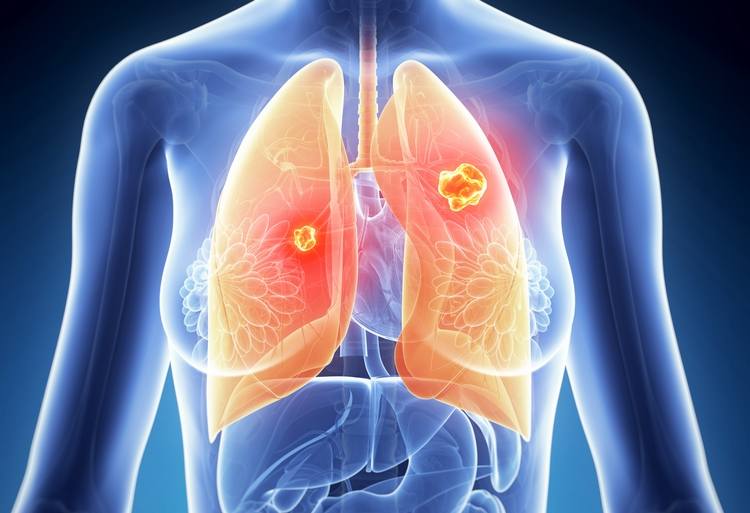 Triple-treatment Prevents Recurrence of Resistant Form of Lung Cancer