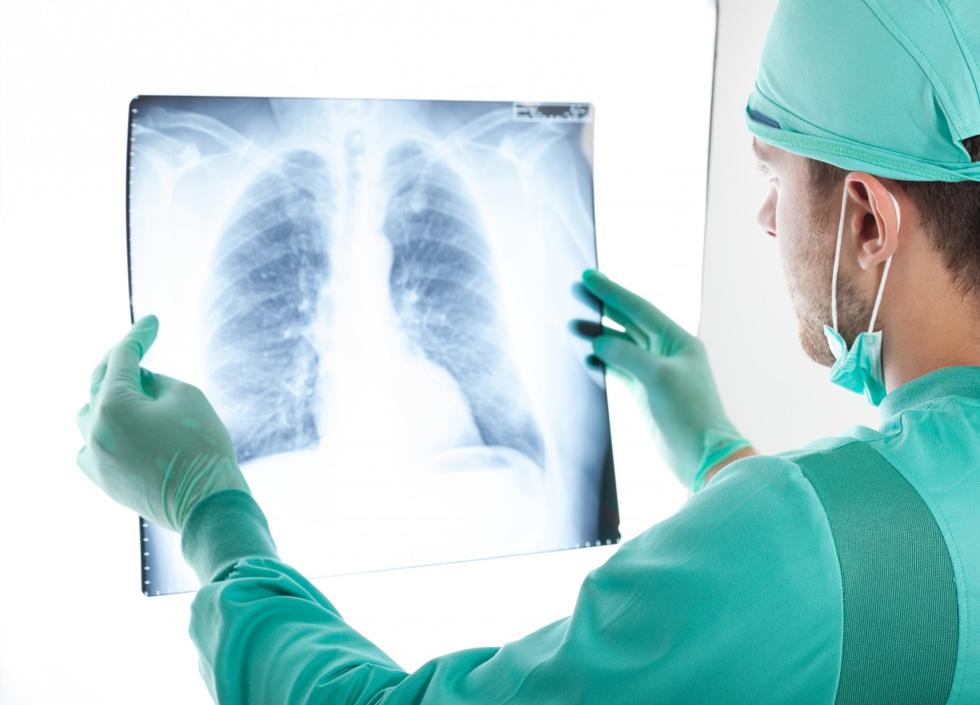 Surgical Choice for NSCLC Patients Depends on Surgeon Experience