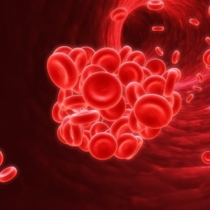 Lung Cancers Detected Using Metabolic Phenotyping of Blood Plasma