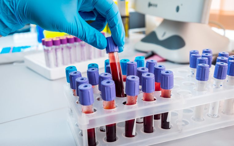 Blood Test at Lung Cancer Diagnosis Shortens Time to Treatment Decision
