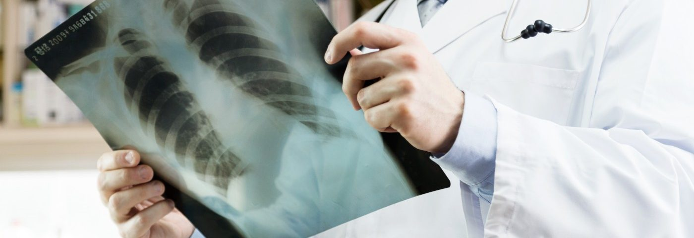 Pioneering Clinical Trial Successfully Controls Patient's Advanced Lung Cancer