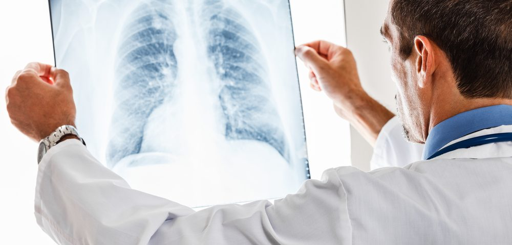 Lung Cancer Is Underdiagnosed in Metastatic Kidney Cancer Patients, Study Suggests